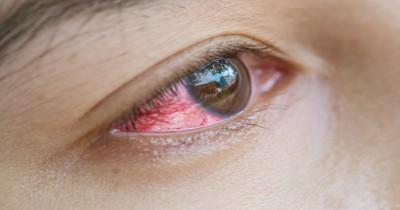 8 Fakta Bahaya Menggunakan Softlens pada Mata yang Harus Diketahui