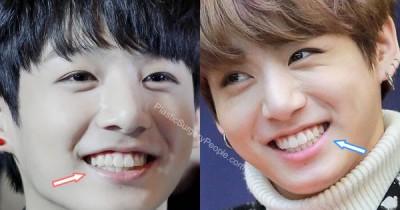 Apakah Bibir Jungkook BTS Oplas? Coba Lihat Perbandingan Wajahnya di sini